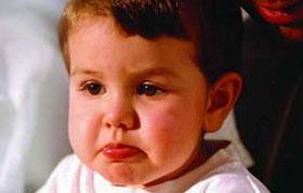 小儿腺样体肥大症状有哪些表现?